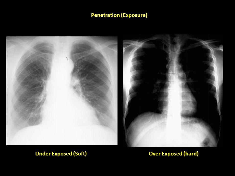 Word penetration vs exposure in radiology very